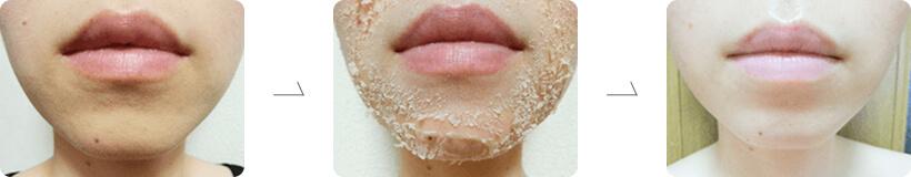 細胞を活性化して、肌本来の強さと美しさを再生