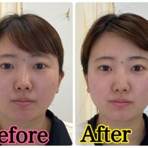 お顔の太りやたるみ改善は話題の【ハイフ】なんです!